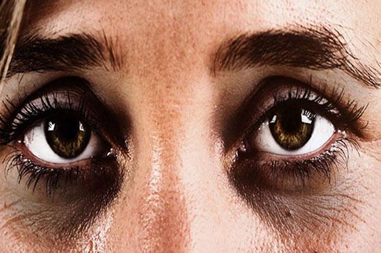 آنکھوں کے گرد سیاہ حلقوں کا علاج گھریلو ٹوٹکوں سے کیجئے