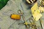 مریض کا نگلا فون ڈاکٹروں نے 6ماہ بعد پیٹ سے نکال لیا